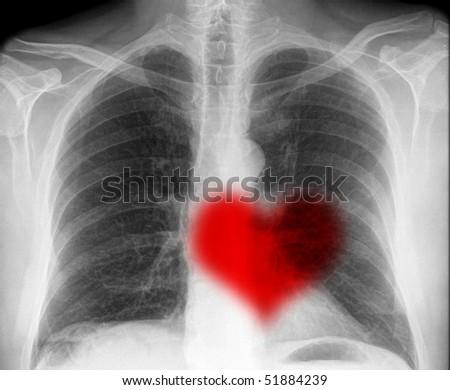 heartbeat on x-ray - stock photo
