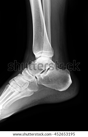 Heel X ray picture - stock photo