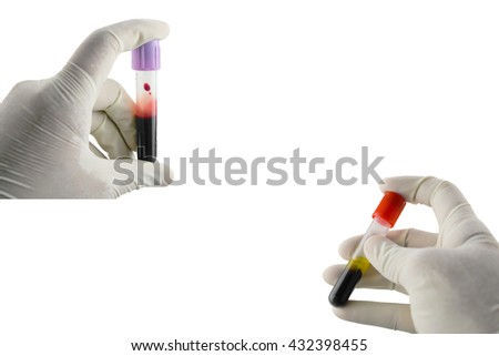 Hematology and  immunology blood requisition for HIV in laboratory,Specimen in Clot-blood tube and EDTA blood tube collection,Lavender  color blood sample collection tubes.(have clipping path) - stock photo