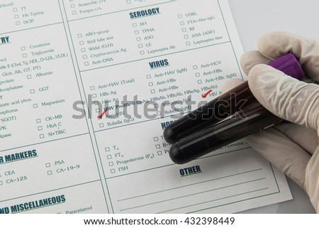 Hematology and  immunology blood requisition for HIV in laboratory,Specimen in EDTA tube blood collection,Lavender  color blood sample collection tubes. - stock photo