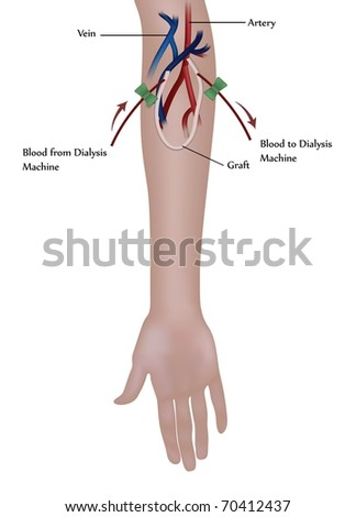 Hemodialysis procedure. Used at the renal insufficiency. - stock photo