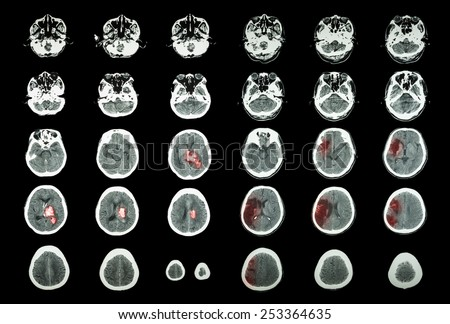 Hemorrhagic Stroke and Ischemic Stroke .  CT scan of brain : intracerebral hemorrhage ( 3 left column ) , cerebral infarction ( 3 right column )) ( Medical and Science background ) - stock photo