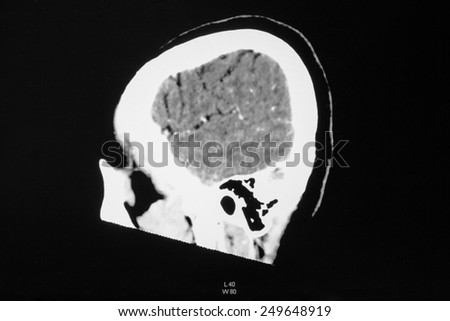 Hemorrhagic Stroke . CT scan (computed tomography) of brain ( cerebrovascular system )  - stock photo