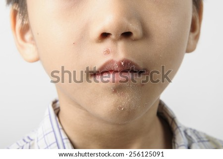 Herpes on kid mouth and become dry and resolve - stock photo