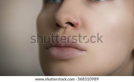 Herpes on the nose - Pretty young caucasian woman with herpes her on nose, close-up. Human Virus - stock photo
