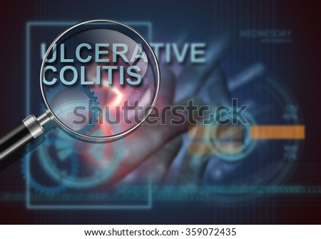 hi tech infographics of ulcerative colitis made in 3d software - stock photo