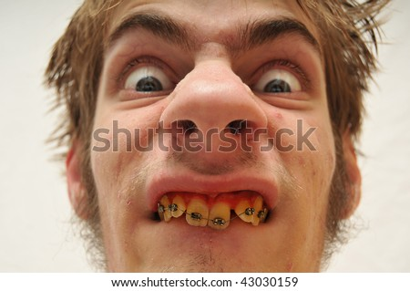 Hideous Monstrous Man staring at the camera with wide eyes, yellow crooked teeth with braces and huge nose. Eww! Ugly.