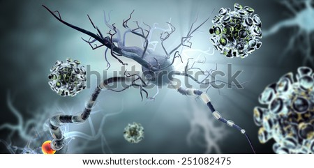 High quality 3d render of viruses attacking nerve cells, concept for Neurologic Diseases, tumors and brain surgery.  - stock photo