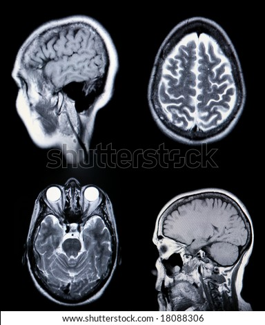 High Resolution  MRI/ MRA (Magnetic Resonance Angiogram) of the brain vasculature (arteries) CRT Monitor Grain Visible - stock photo