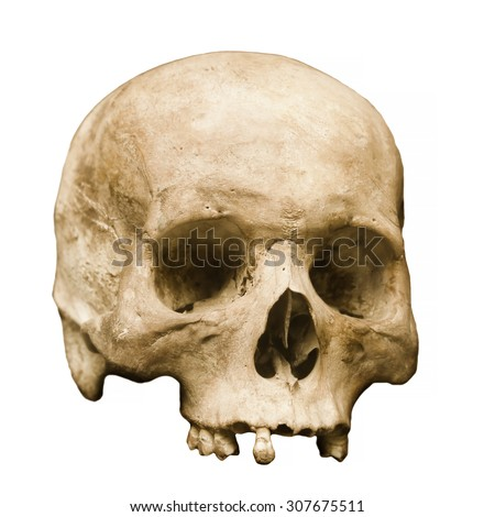 Highly detailed image of a human skull, minus the jaw, displayed against a white background.  Some teeth remain, and pores in the bone are clearly visible. - stock photo