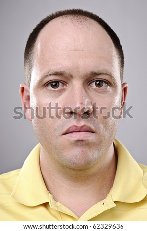 Highly detailed portrait of a balding man - stock photo