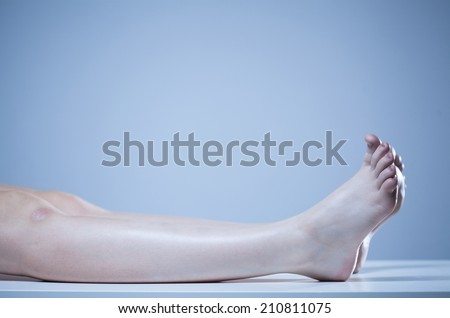 Horizontal view of dead body in morgue - stock photo