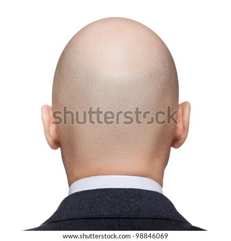 Human alopecia or hair loss - adult man bald head rear or back view - stock photo