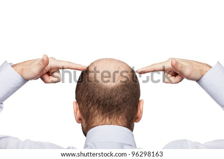 Human alopecia or hair loss - adult man hand pointing his bald head - stock photo