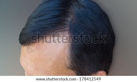 Human alopecia or hair loss problem and grizzly , shot from side view on blurred gray background - stock photo