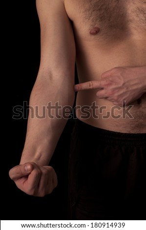 Human anatomy series: showing golfer elbow - stock photo