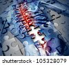 Human back disease medical concept with a jigsaw puzzle texture and a piece missing as a broken skeleton anatomy and a symbol of the spine and joint pain caused by inflammation. - stock photo