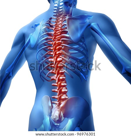 Human body backache and back pain with an upper torso body skeleton as a spine and vertebral column in red as a medical health care concept for spinal surgery and therapy on white background. - stock photo
