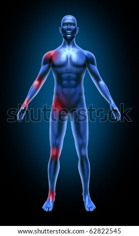 Human body joint pain inflamation medical x-ray pose joints muscles blue