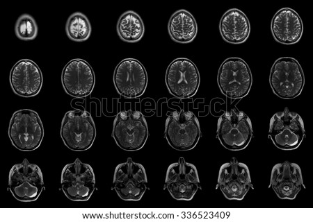 Human brain on MRI scans Transverse sectional planes of the human head on MRI scans  - stock photo