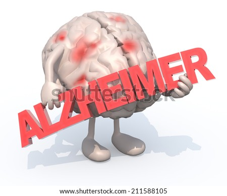 "human brain with arts that embraces a word ""alzheimer"", 3d illustration - stock photo"