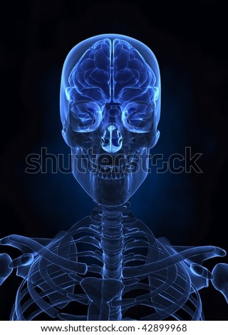 Human brainx-ray  top view - stock photo