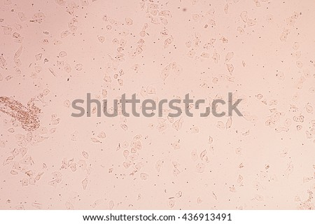 Human cells in urine sample view in microscopic.Medical background. - stock photo