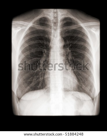 human chest with normal lungs on x-ray - stock photo