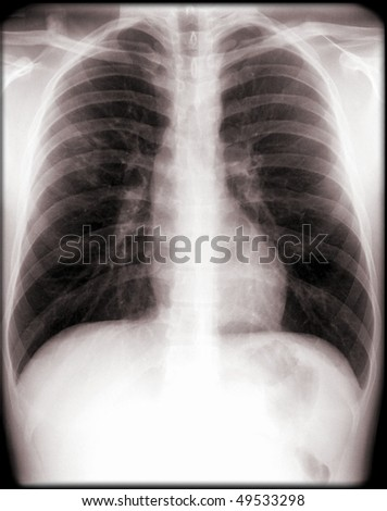human chest x-ray, elderly person - stock photo