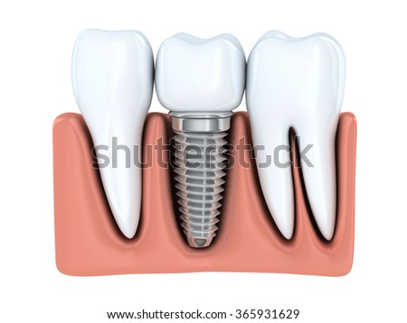 Human Dental implant (done in 3d graphics)  - stock photo