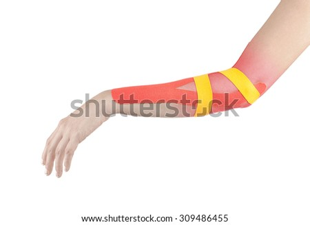 Human elbow pain with an anatomy injury caused by sports accident or arthritis as a skeletal joint problem medical health care concept. - stock photo