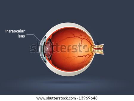 Human eye - intraocular lens - stock photo