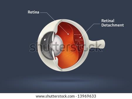 Human eye - retinal detachment (eye disease) - stock photo