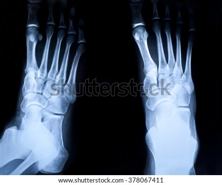 Human foots ankle and leg x-ray picture - stock photo