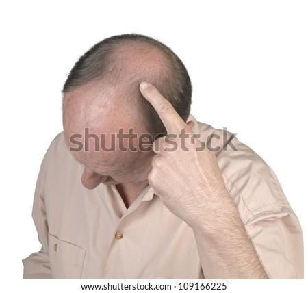Human hair loss - adult man hand pointing his bald head - stock photo