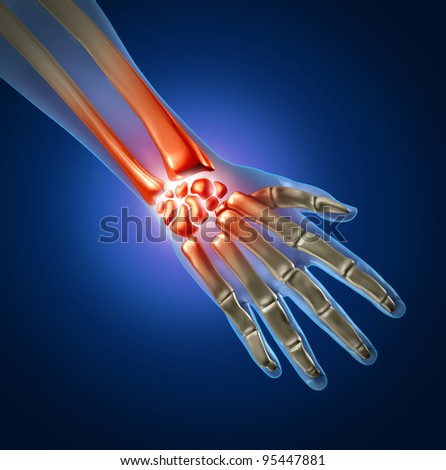Human hand and wrist pain caused by arthritis and carpal tunnel syndrome injury in the hand joint as an anatomy with skeleton and highlighted injured body part as a medical and health care icon. - stock photo