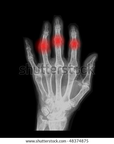 human hand x-ray front view with red illumination - stock photo