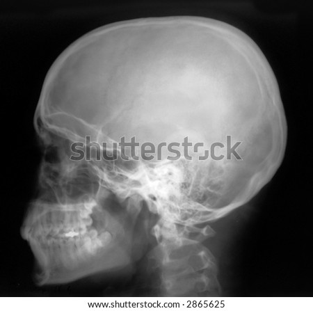 Human head on black and white x-ray film
