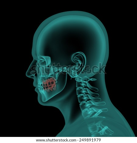 Human head with visible jaws and teeths x-ray scan - stock photo