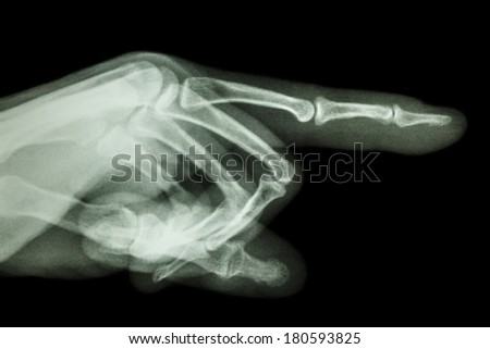 human is pointing the finger (film x-ray)