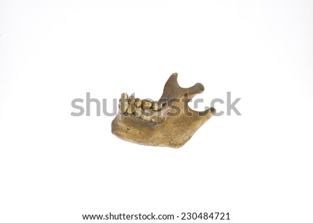 human jaw on white background - stock photo