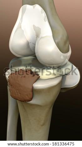 human knee, knee, 3d rendered knee illustration, pain illustration knee side, 3d illustration knee side, Knee x-ray  - stock photo