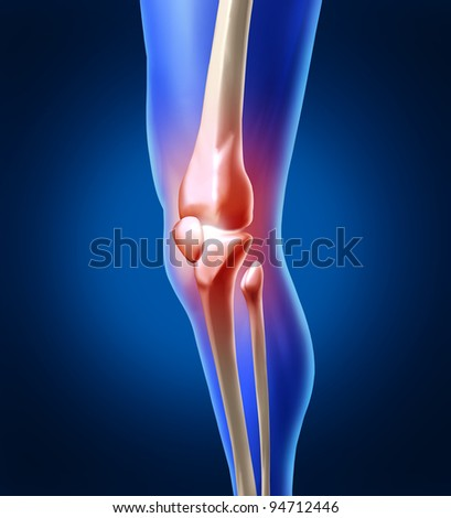 Human knee pain with the anatomy of a skeleton leg as an inflammation of the painful joint needing orthopedic surgery or physical therapy as a health care and medicine sports injury concept. - stock photo