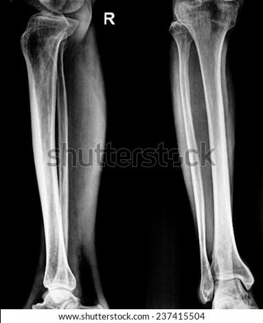Human Leg Bones Stock Photo Royalty Free 237415504 Shutterstock