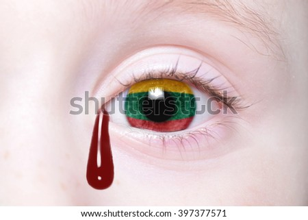 human's eye with national flag of lithuania with bloody tears. concept - stock photo
