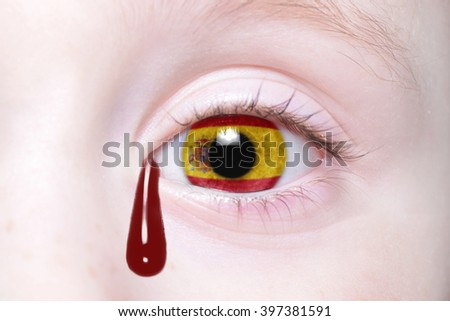 human's eye with national flag of spain with bloody tears. concept - stock photo