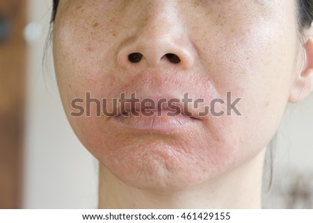 Human skin, presenting an allergic reaction, allergic rash.