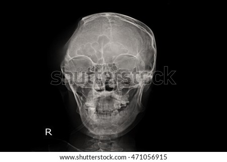 human skull and post operation caniectomy