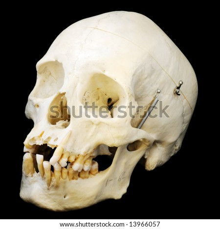 Human skull with jaw on a spring and some missing teeth.  Three quarter view.