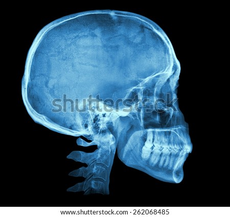 Human skull X-ray image isolated on black - stock photo